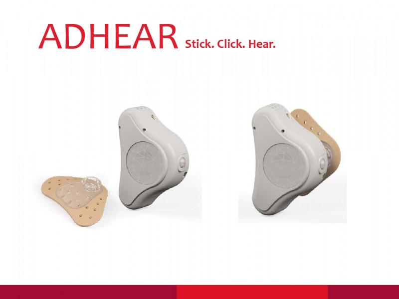 骨導助聽器